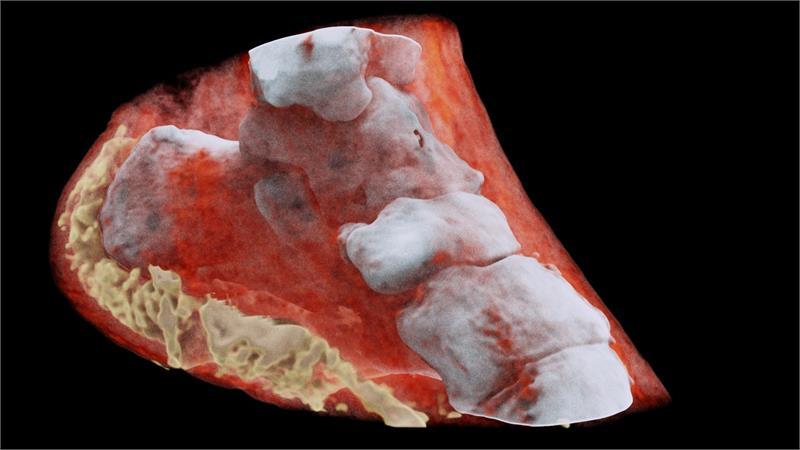 Röntgenler insan vücudunu artık renkli ve 3 boyutlu olarak gösterecek